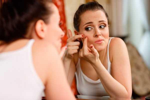 8 Cara  Mengatasi Jerawat  Karena Hormon  Berlebih