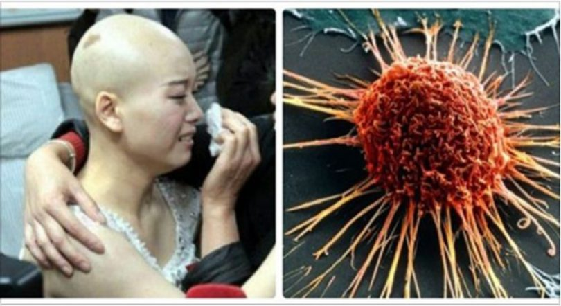 Nếu buổi sáng thức dậy có những dấu hiệu này, hãy đi khám UNG THƯ ngay, để lâu ung thư di căn là khỏi cứu