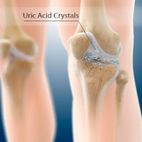 high uric acid urine causes treatment for severe gout attack safe level of uric acid in blood