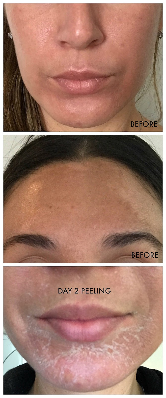vi chemical peel