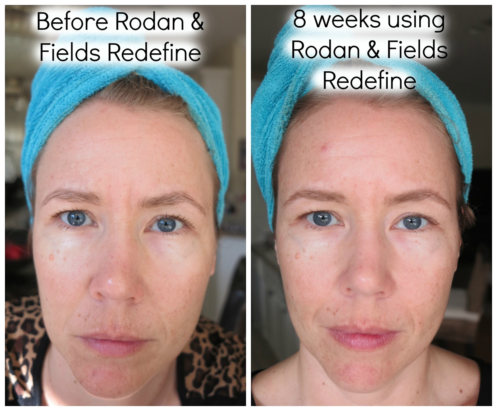 rodan fields redefine regimen review   appearance  lines pores  loss  firmness