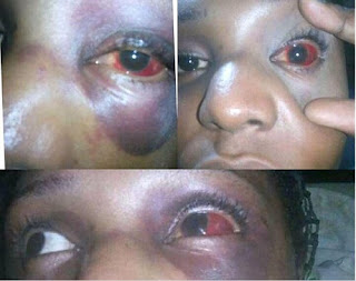 How I Was Beaten Up And Robbed By Okada Man In Lagos - Lady Recounts