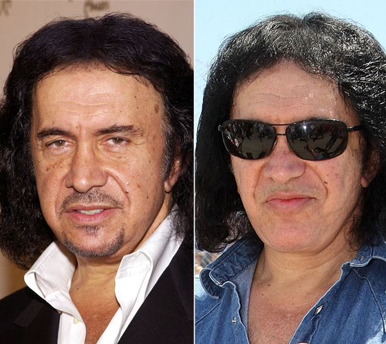 Gene Simmons Plastic Surgery Before And After Facelift