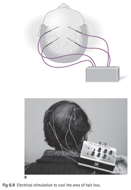 HEALING WAYS: ALOPECIA (Hair Loss)