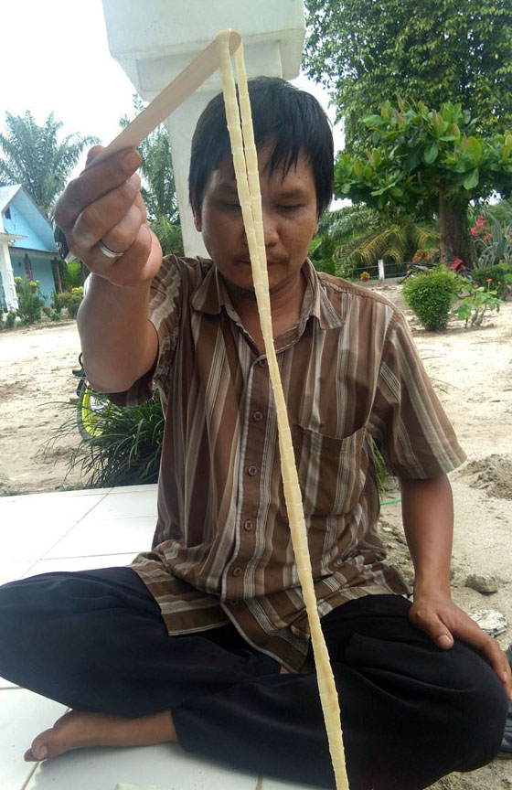 Cacing pita yang ditemukan dari perut warga Simalungun sepanjang 2,8 meter.