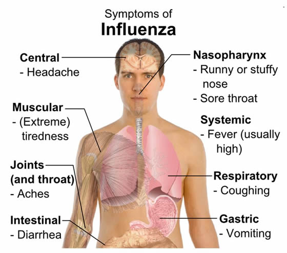 Symtomps of influenza