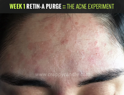 How To Use Retin A Survive The Purge The Acne Experiment