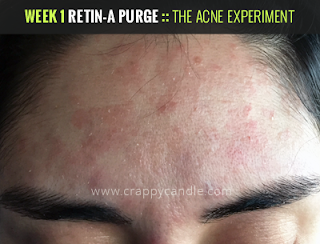 Week 1 Retin-A Purge :: The Acne Experiment