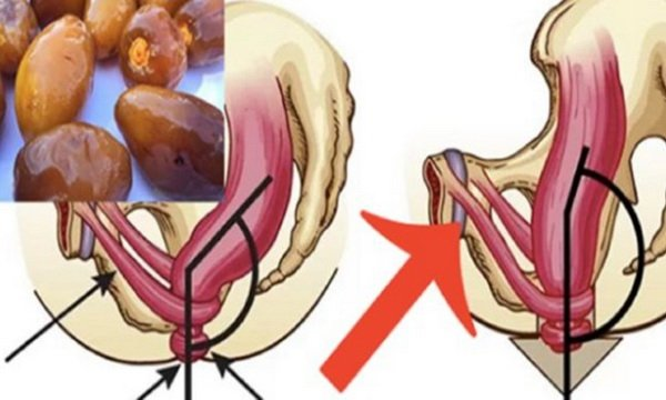 A spoonful of this mixture relieves your constipation
