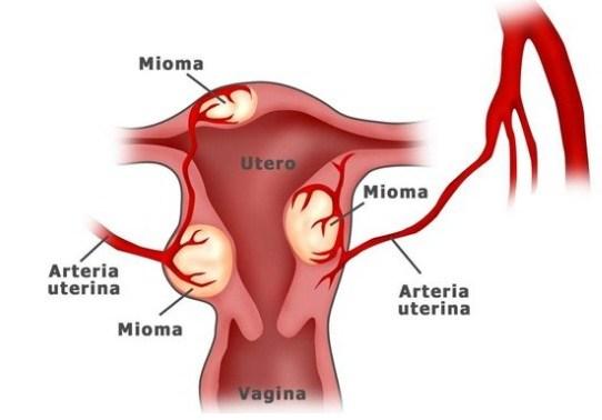 ciri ciri penyakit miom