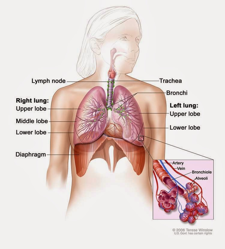 Find Out More About Malignant Mesothelioma