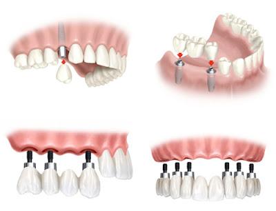 những lưu ý trước khi trồng răng implant -3