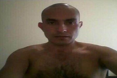 Alopecia, calvicie, tratamientos