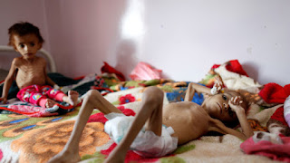 Innalillahi! Setiap 10 Menit Anak Yaman Meninggal Dunia