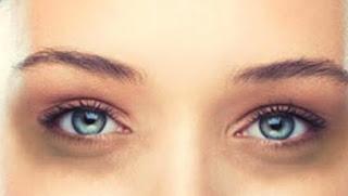 علاج الهالات السوداء وتجاعيد العين بمكونات طبيعيه