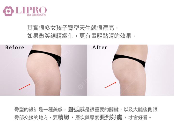 臀型的關鍵-大腿後側與臀部交界處