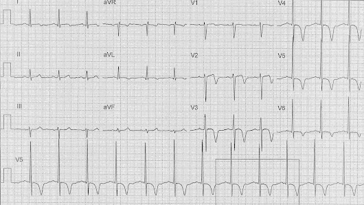 ECG of the Week - 29th December 2014