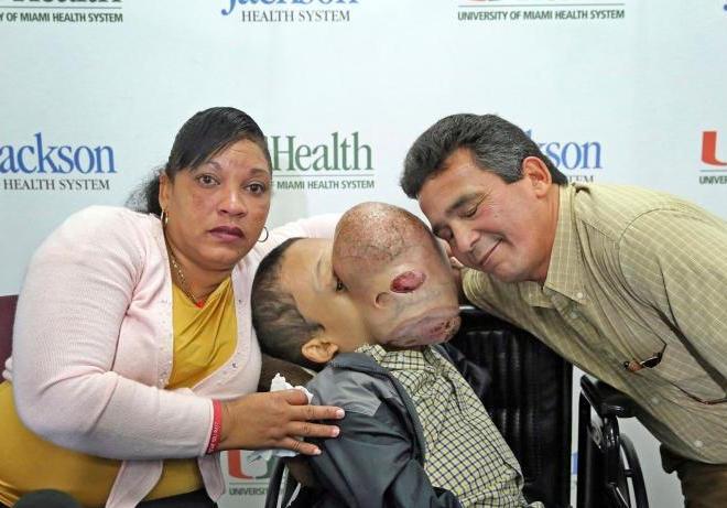 Bambino muore a 7 giorni dall'asportazione di un tumore facciale benigno di 4,5 Kg