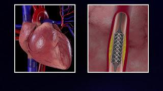 عملية القسطرة أنبوب  ضيق  في أحد الأوعية الدموية للذراع أو الساق المؤدية لجهة القلب