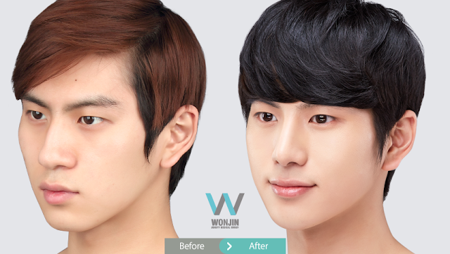 Rhinoplasty in Korea