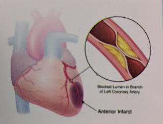 Herbal jantung koroner