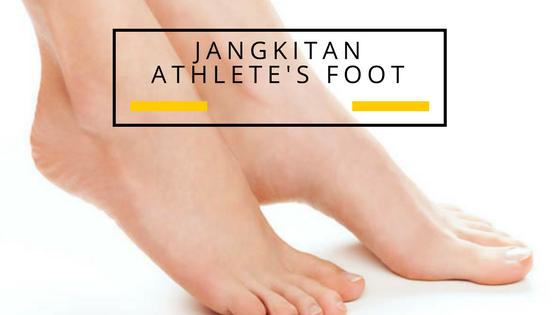 Apa? Keknil terkena jangkitan Athlete's Foot