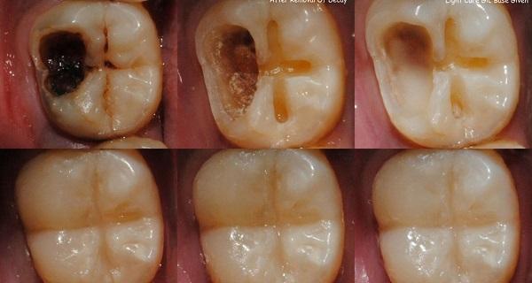 Luar Biasa Inilah Cara Ampuh Atasi Gigi Berlubang Tanpa Harus Ke