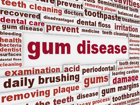 Common Myths of Gum Disease