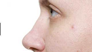 Warts and verrucas are small lumps on the skin
