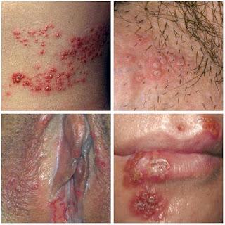 obat herpes genitalis resep dokter paling ampuh pada wanita