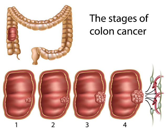 stages-of-colon-cancer
