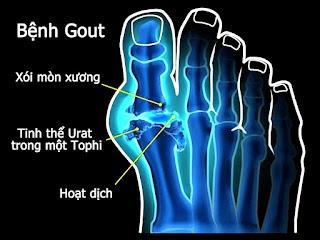 Bệnh gút có thể làm xói mòn  xương, hình thành các cục Tophi