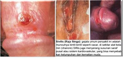 ANTIBIOTIK Untuk Batang penis Bentol dan gatal