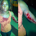 Graphic Photos: Couple arrested in Lekki for stabbing their neighbours with broken bottle