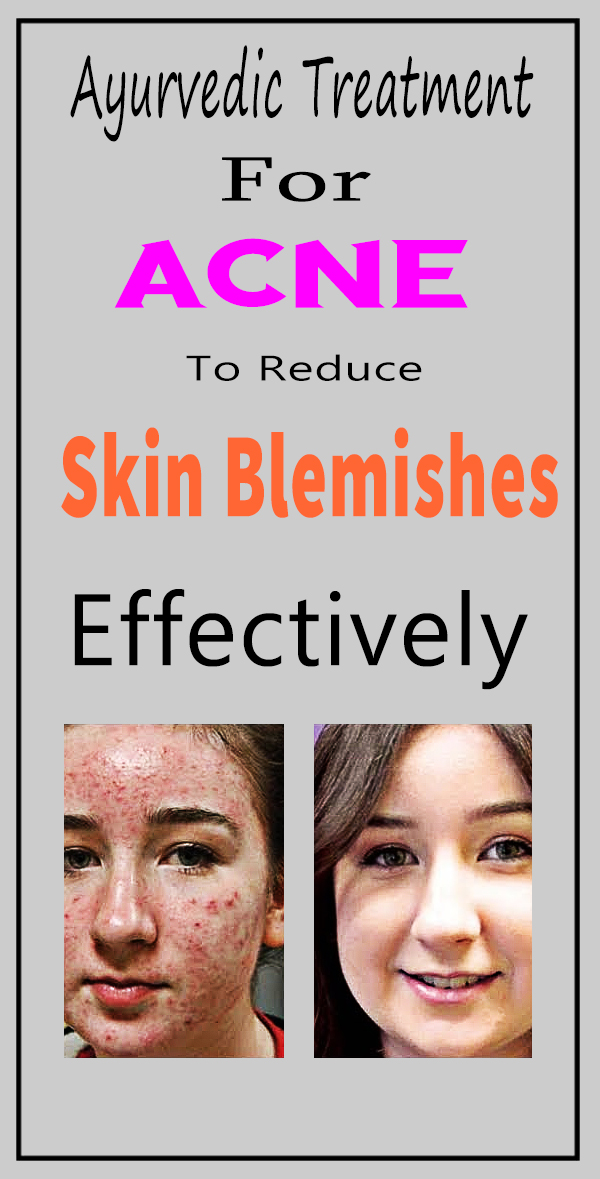 to reduce skin belmishes effectively