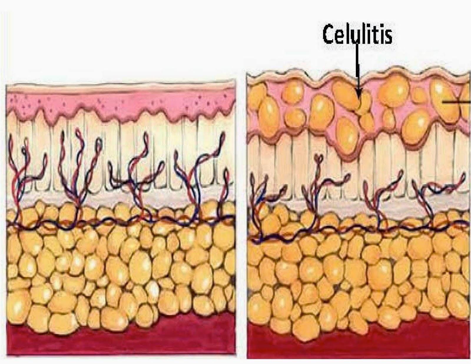 Celulitis 2014