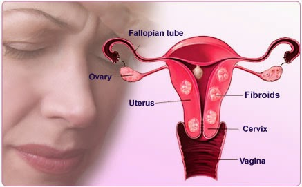 cara kecutkan fibroid