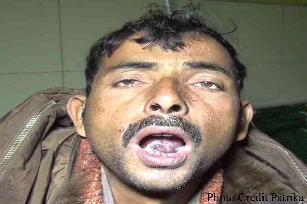 youth-tongue-cut-by-badmash-to-prevent-witness-in-murder-up-faizabad