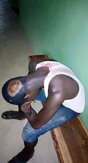 2019: Atiku, Kwankwaso Supporters In Bloody Clash At Adamawa, Scores Hospitalised ...See Photos