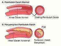 Hati-hati Plak Di Pembuluh Darah Jantung Sebabkan Penyakit Jantung Koroner