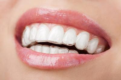 Niềng răng không mắc cài có đắt không?