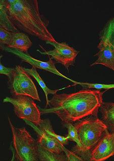 Fluorescence microscope image.