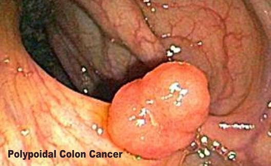 Polypoidal Colorectal Cancer