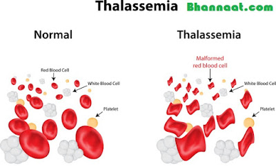 Thalassemia Symptoms and Treatment In Hindi