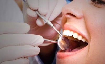 How To Know If You Have A Cavity, Recognize and Medical Aid