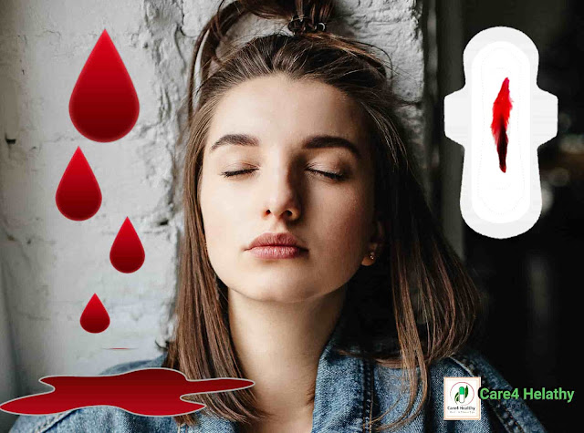 irregular periods treatment. care4healthy.com
