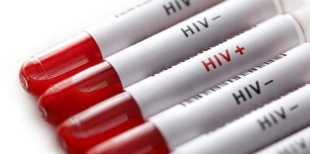 Selain HIV AIDS, Ternyata Ini Jenis Penyakit Tidak Bisa Disembuhkan Lainnya