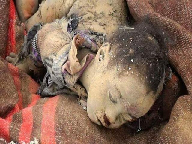 ปฏิบัติการซาอุฯถล่มเยเมนเด็กเจ็บ-ตาย อื้อ