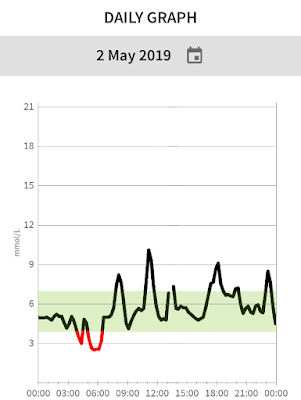 Glucose monitoring graph showing night time hypos