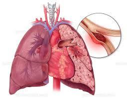 Cara menyembuhkan emboli paru
